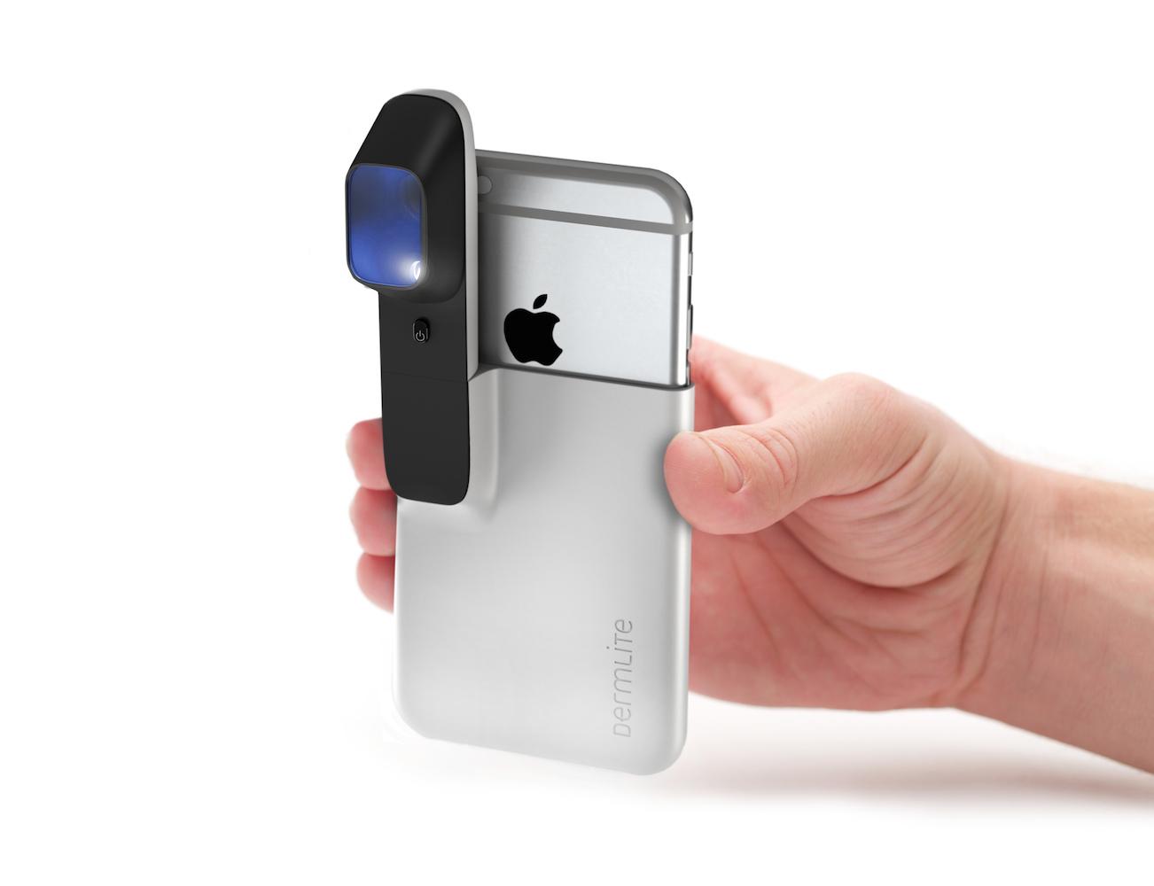 HÜD – The Smartphone Skin Cancer Screener