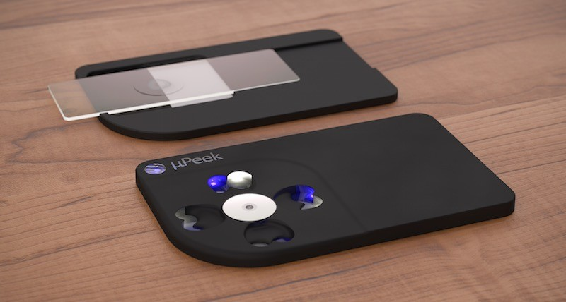 Credit Card-Sized µPeek Turns Your Phone into a Microscope
