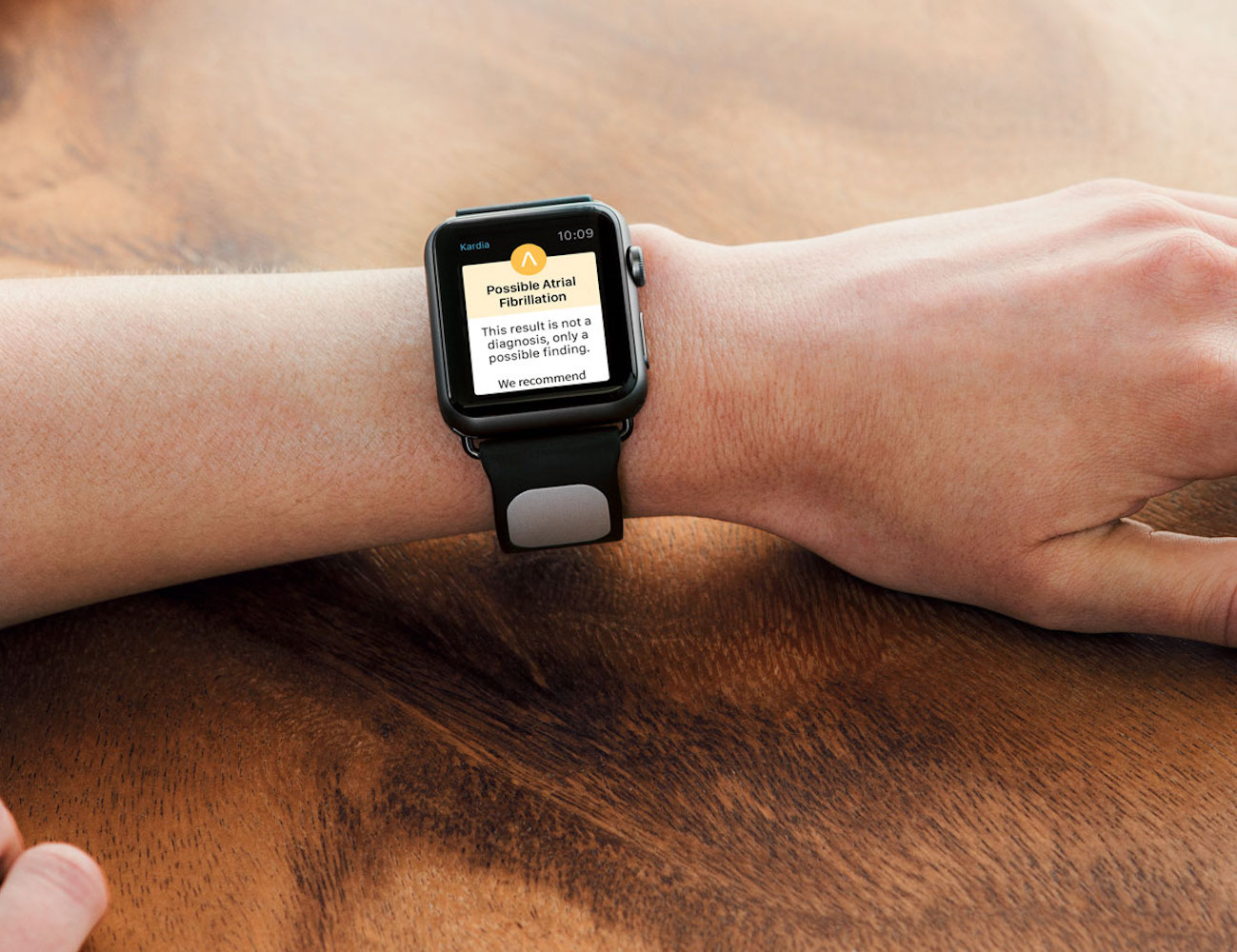 Kardia Band – The EKG Strap for Apple Watch by AliveCor