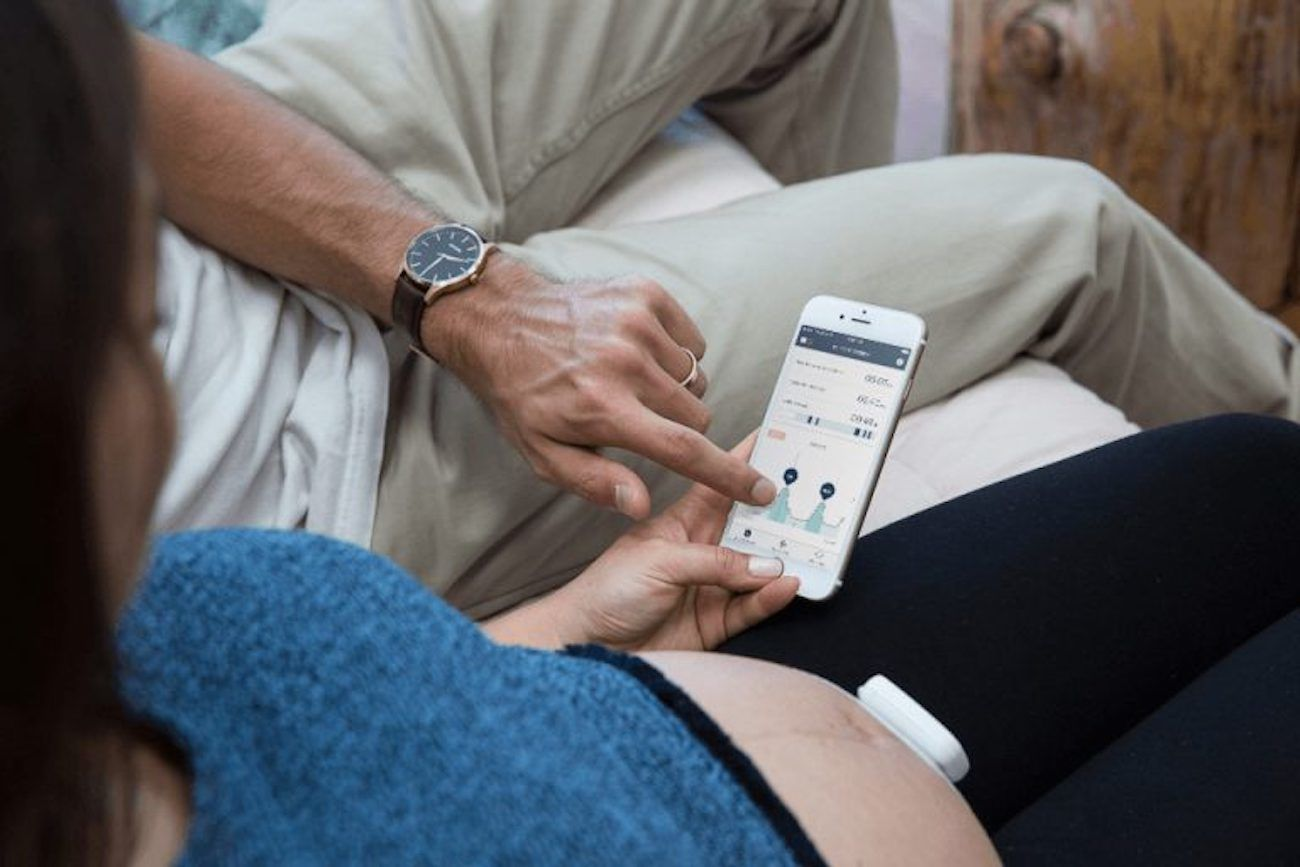 Bloomlife Pregnancy Tracking Wearable