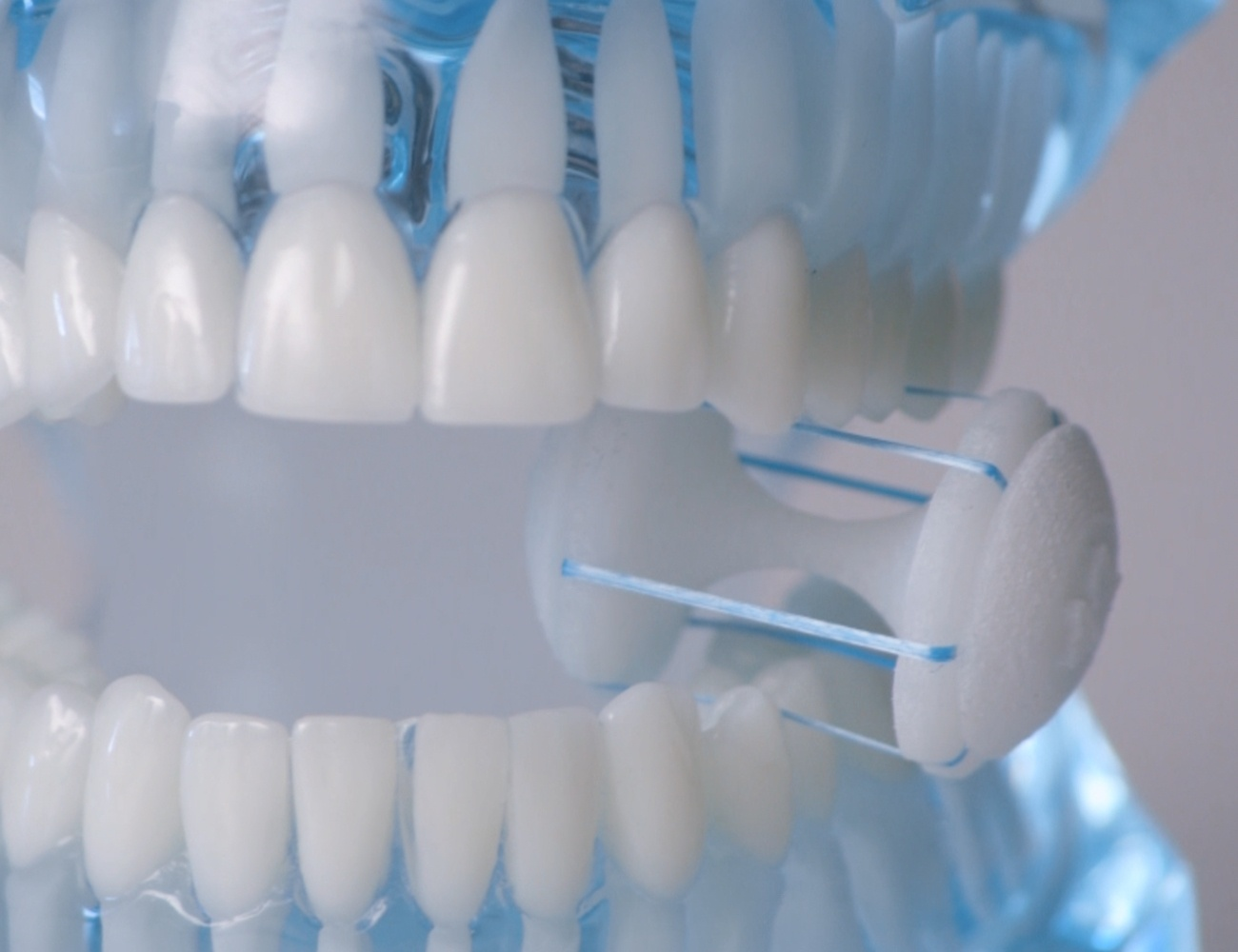 CrossFloss Hands-Free Dental Flosser