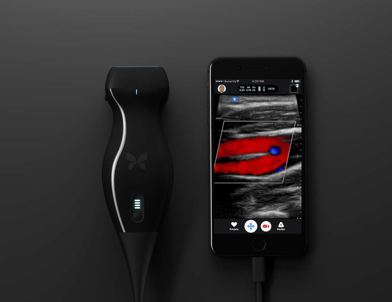 Butterfly iQ Portable Ultrasound Device