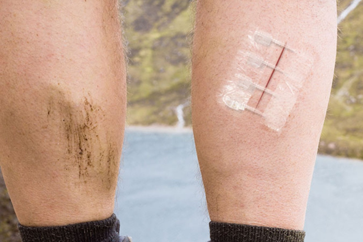 ZipStitch is the latest thing in wound repair technology