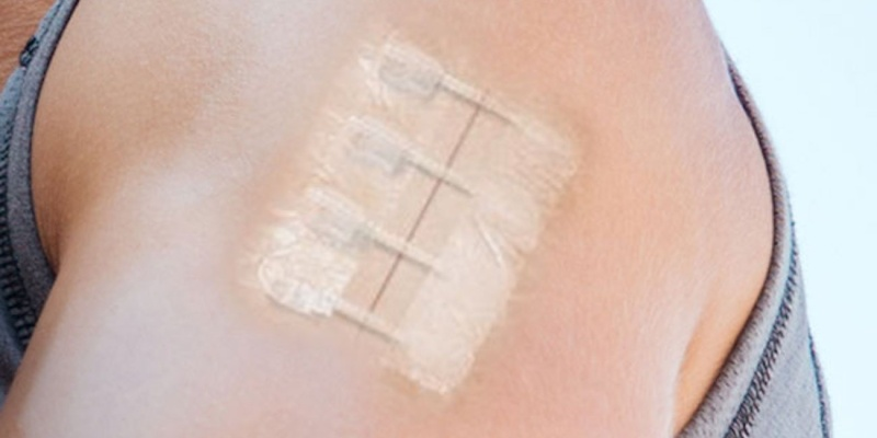 laceration kit - ZipStitch is the latest thing in wound repair technology