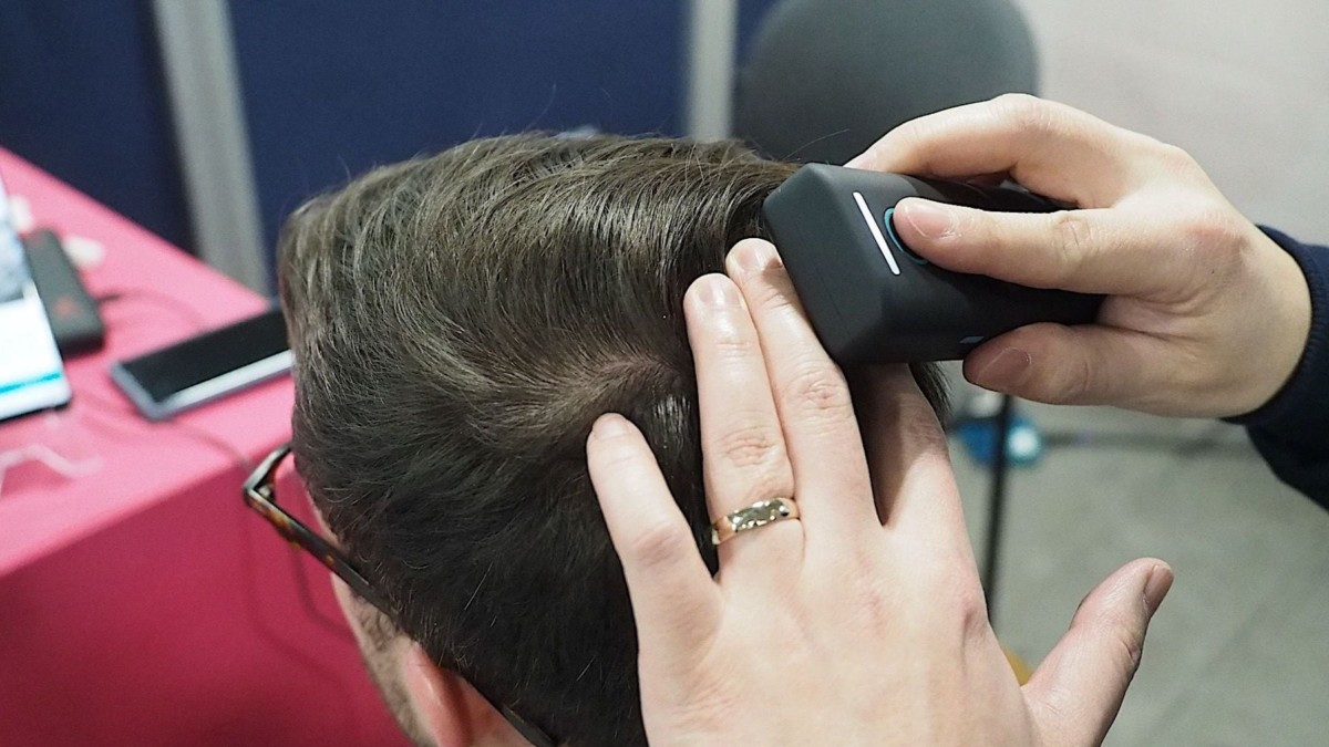 Samsung Becon Scalp Scanner Hair Loss Device helps fight thinning hair