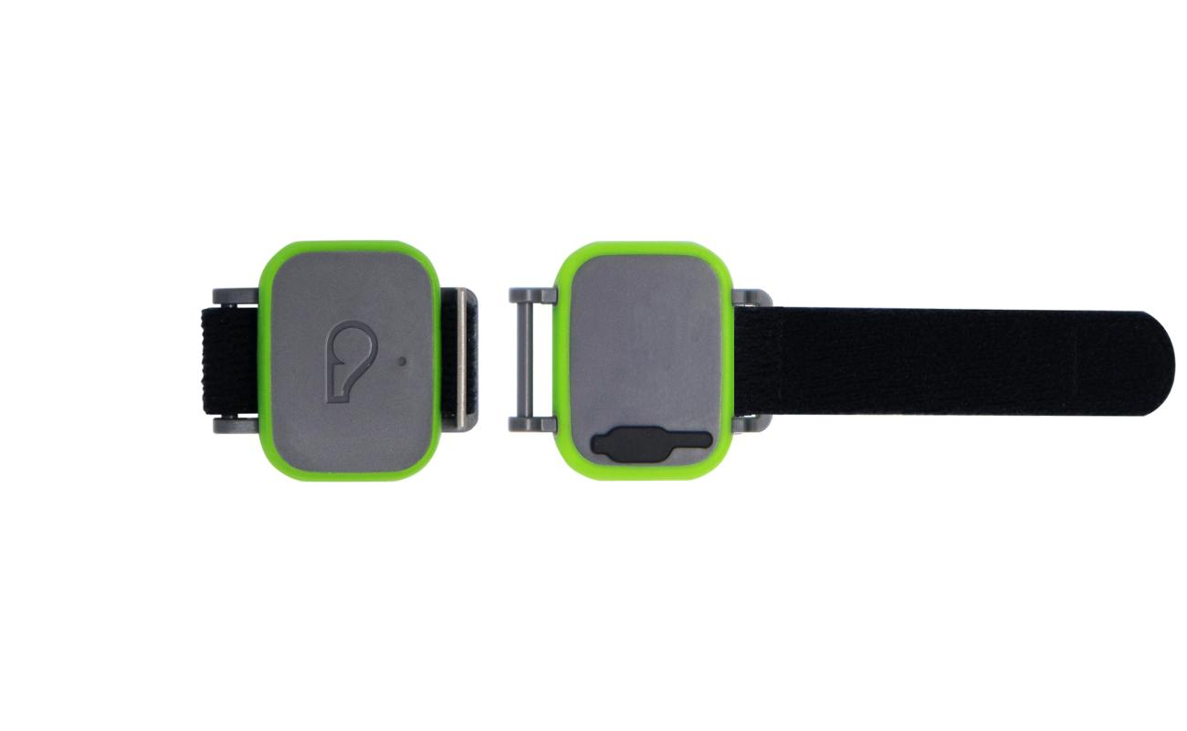 Whistle FIT Pet Activity Monitor helps you keep your pet healthy