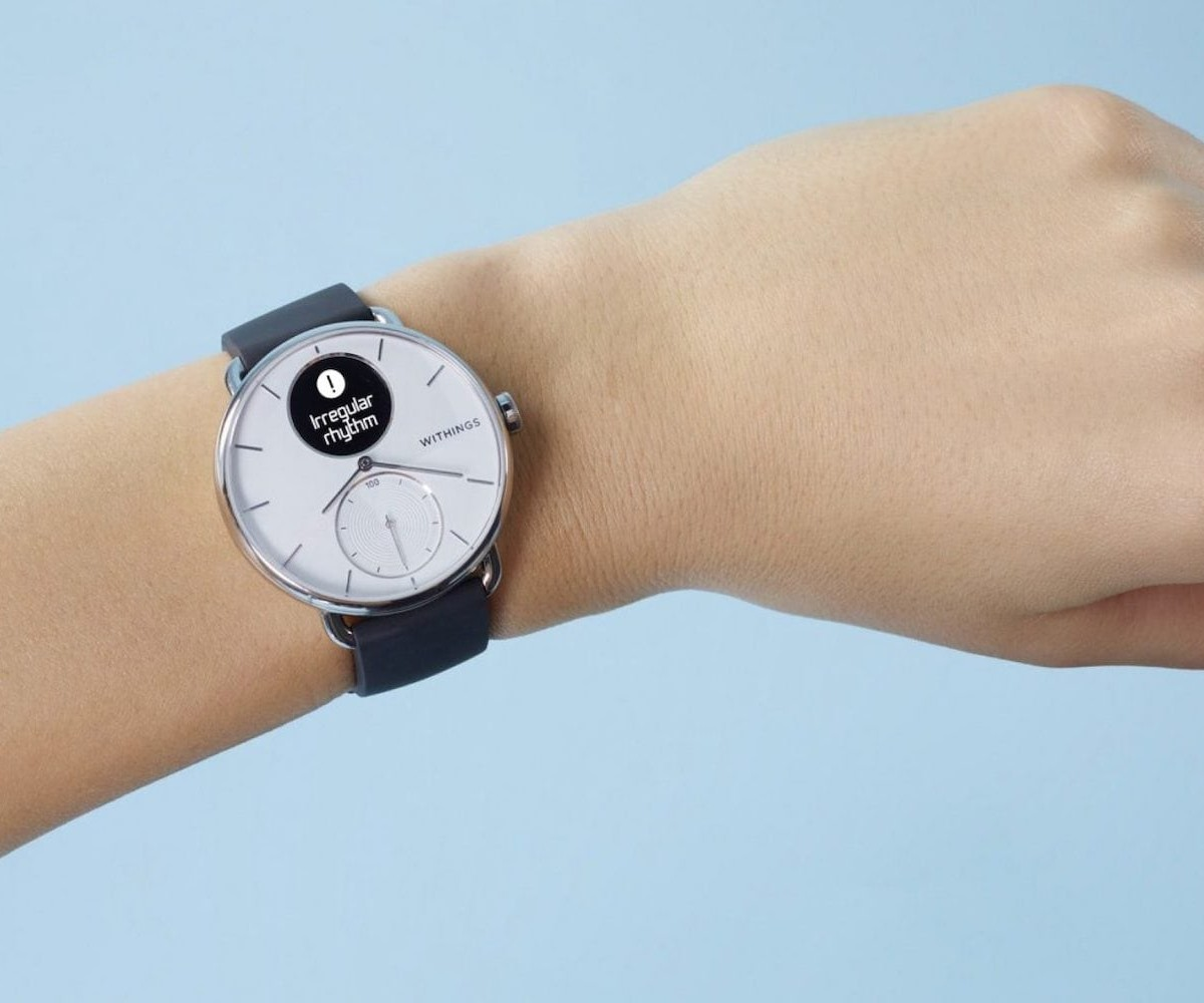 Withings ScanWatch wearable heart monitor tells you about your health