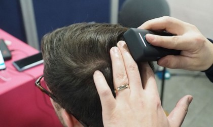 Samsung Becon Scalp Scanner Hair Loss Device