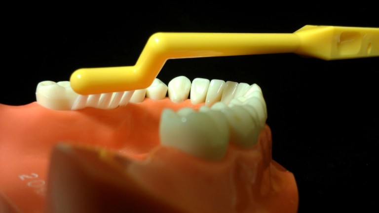 The WUNDERBRUSH for GUMS is engineered specifically for the proper care of your gums